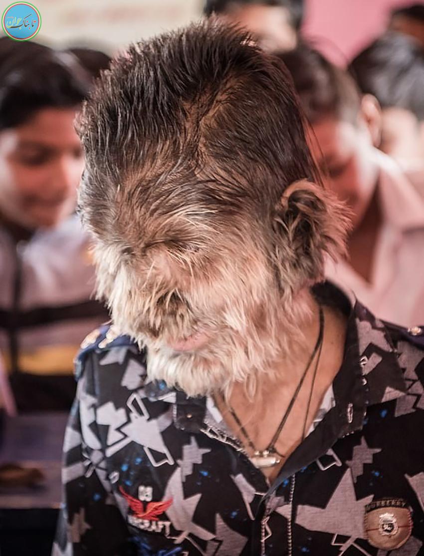 ماجرای حیرتآور پسربچه گرگنما در هند