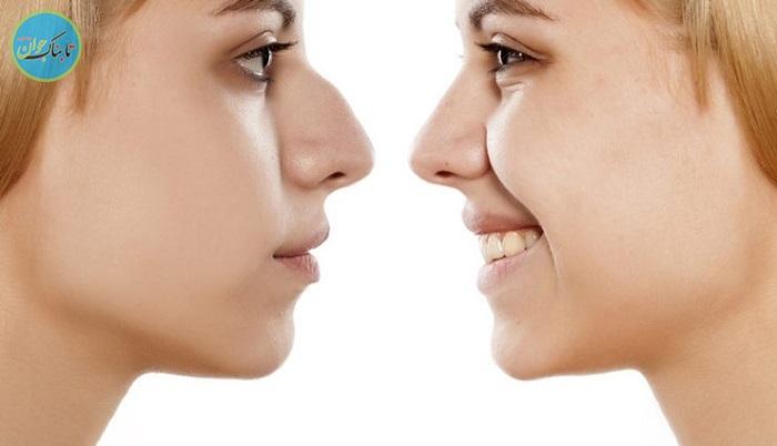 بسته خبری : داشتن بینی زیبا بدون عمل جراحی + فیلم