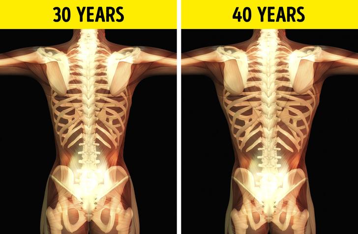 تغییرات استخوانی