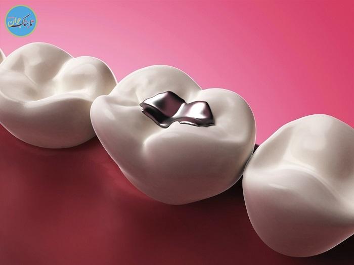 دیگر نیاز به پر کردن مجدد دندان نیست