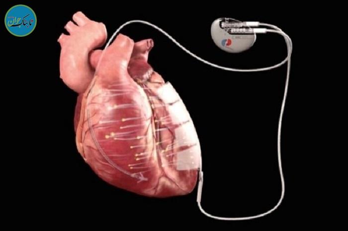 درمان بیماریهای قلبی با برق