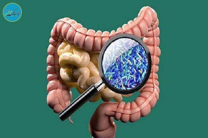 استفاده از میکروب روده برای درمان بیماری اماس
