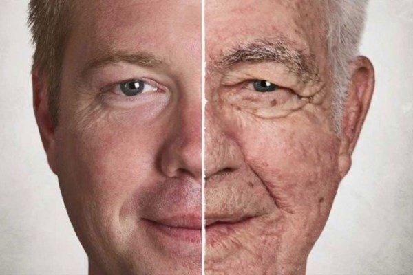 پیری زودرس