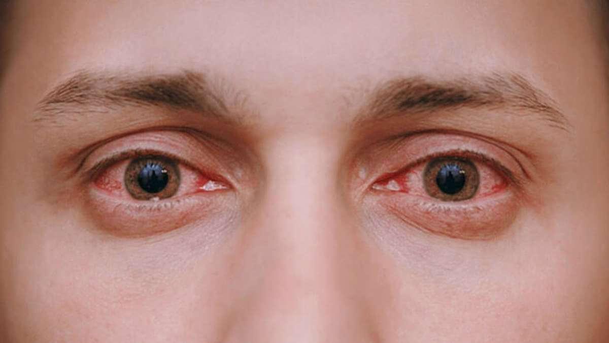 قرمزی چشم