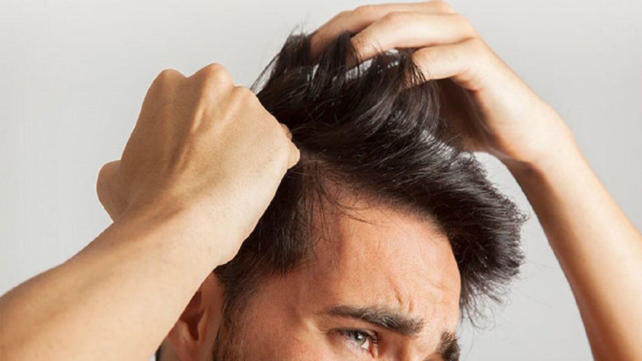 موی سر